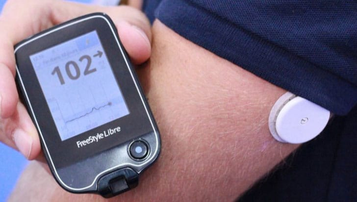 Wearable Blood Sugar Monitor